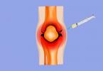 artrocentese