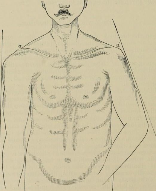 Ectospia