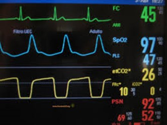 Monitor de sinais vitais. Em amarelo no monitor podemos observar a curva de capnografia, utilizada para medir a concentração de oxigênio no ar expelido por pacientes intubados.