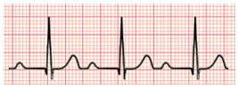 Exame de Eletrocardiograma (ECG) mostrando Bloqueio Atrioventricular de 1º Grau
