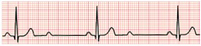 Exame de eletrocardiograma (ECG) mostrando bloqueio atrioventricular de 2º grau 2:1.