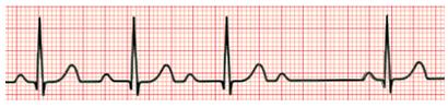 Exame de eletrocardiograma (ECG) mostrando Bloqueio Atrioventricular de 2º Grau Mobitz I (fenômeno de Wenckebach)