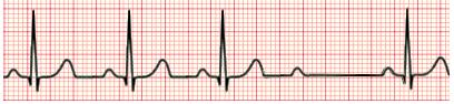 Exame de eletrocardiograma (ECG) mostrando BA de 2º Grau Mobitz II