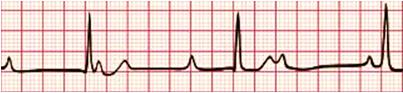 Exame de eletrocardiograma (ECG) mostrando Bloqueio Atrioventricular de 3º Grau