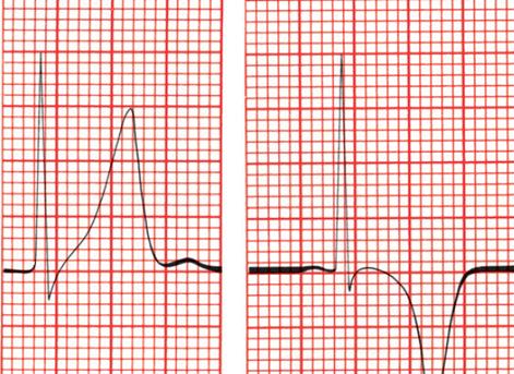 A imagem simula uma leitura de Eletrocardiograma, mostrando uma onda T apiculada à esquerda e uma onda T invertida à direita