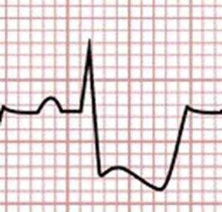 A imagem simula uma leitura de Eletrocardiograma, mostrando Infradesnivelamento de ST