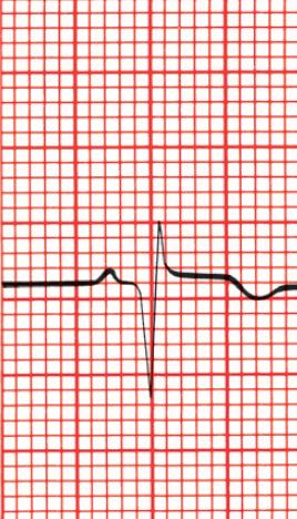 A imagem simula uma leitura de Eletrocardiograma, mostrando onda Q patológica