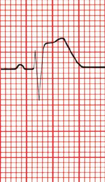 A imagem simula uma leitura de Eletrocardiograma, mostrando Supradesnivelamento de ST
