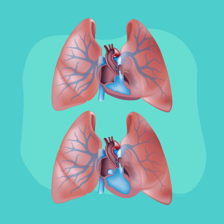 A ilustração mostra dois pulmões representando a hipertansão arterial pulmonar
